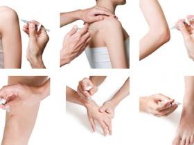 Joint injections (standard steroid injections and Supartz® injection) for arthritis