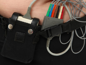 24-hour Holter monitoring